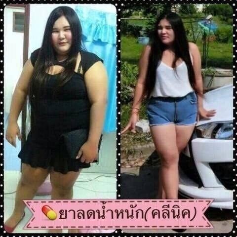ลดน้ำหนัก2-5kgต่อสัปดาห์