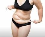 Slinup Plus ลดน้ำหนักไม่โยโย่่  ตอบโจทย์ทุกปัญหาเรื่องอ้วน สูตรสำหรับคนที่น้ำหนักลงยาก